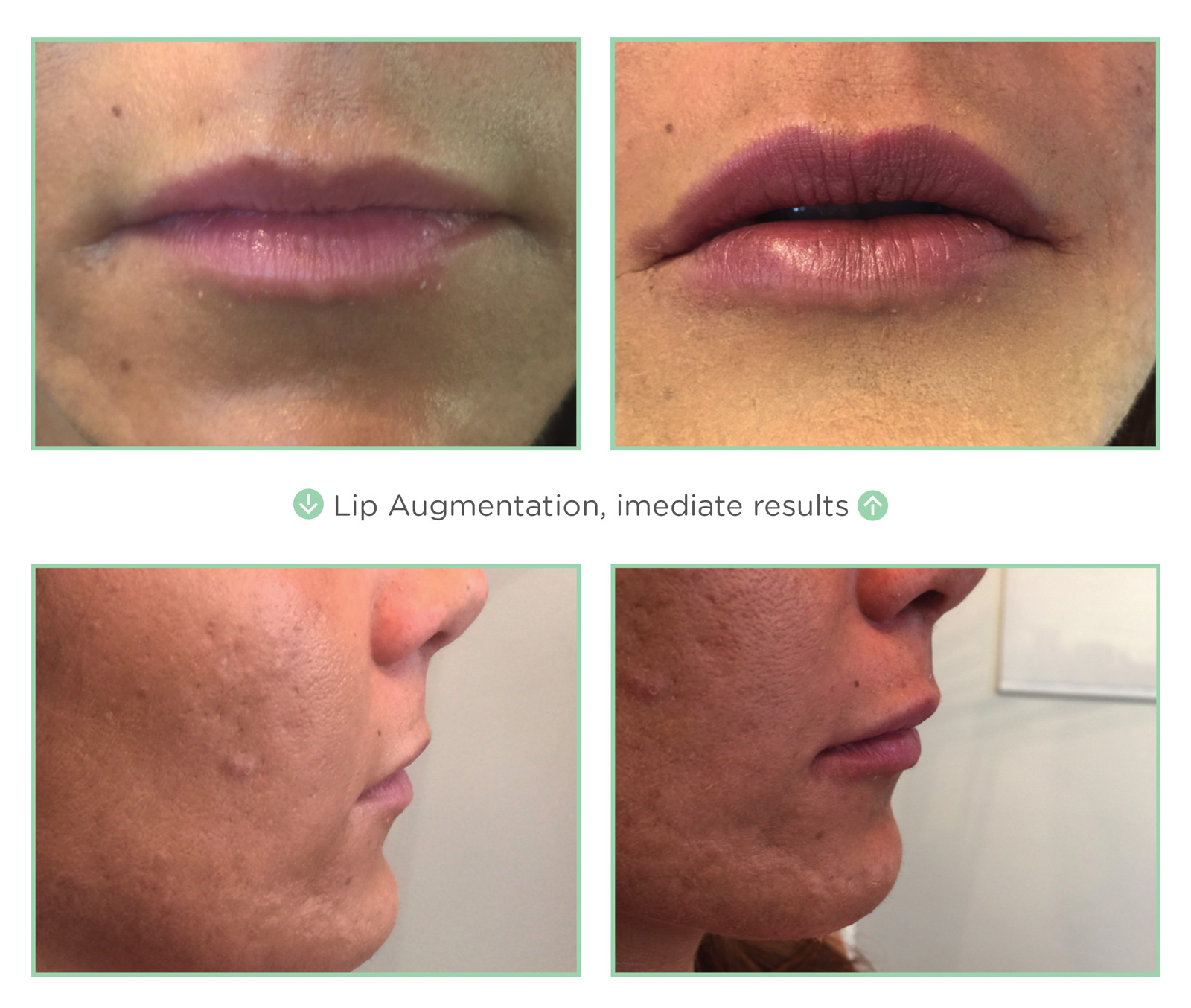 Thread Lift | Non-Surgical Facelift | Medspa Tempe |