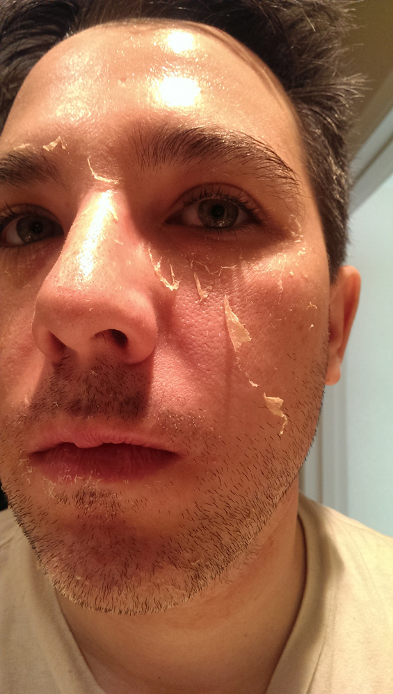 Chemical Peel Day 4