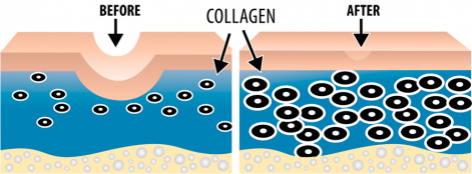 Collagen Induction Therapy Before and After