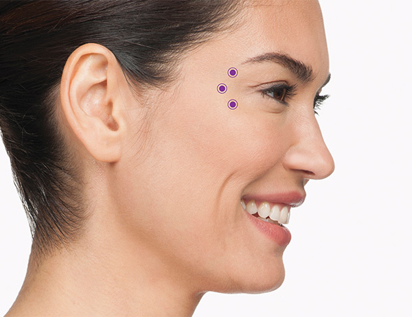 Botox Crows Feet Injection Locations