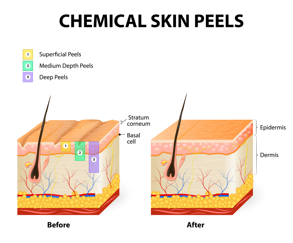Epidermis and Dermis and Chemical Peels