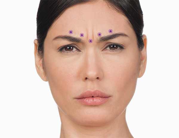 Botox Frown Line Injection Location
