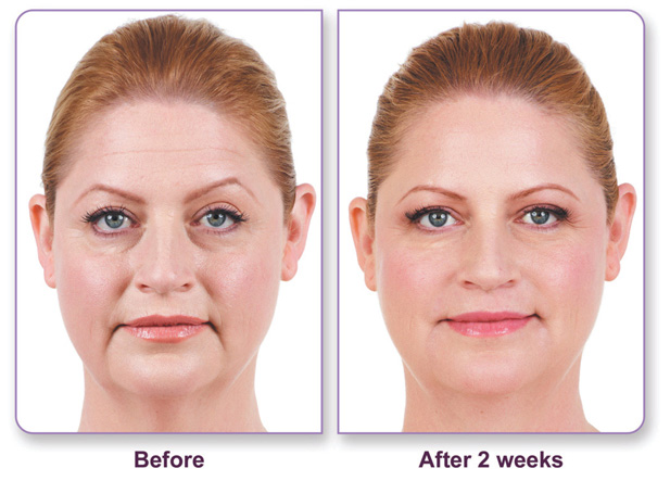 Juvederm Before and After Woman