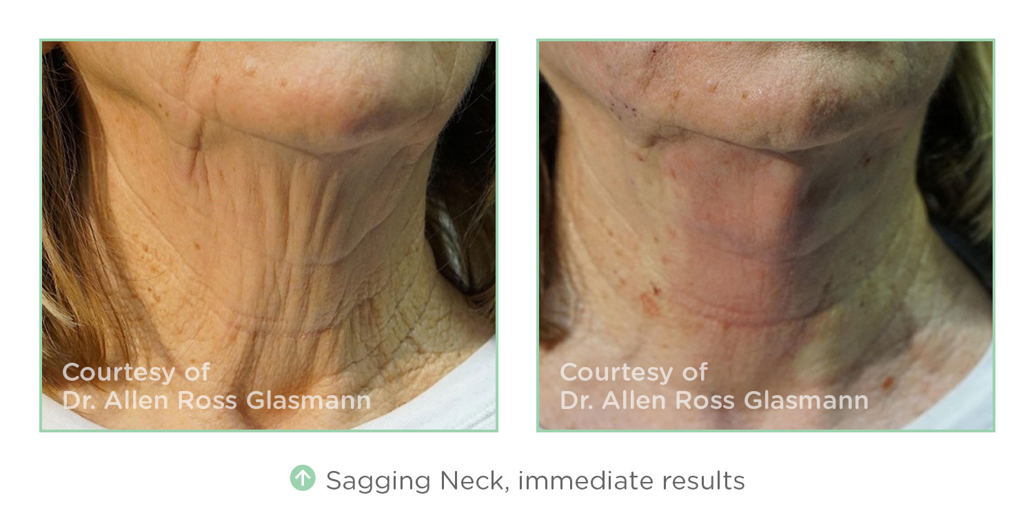 NovaThreads Sagging Neck - Courtesy of Dr. Allen Ross Glasmann