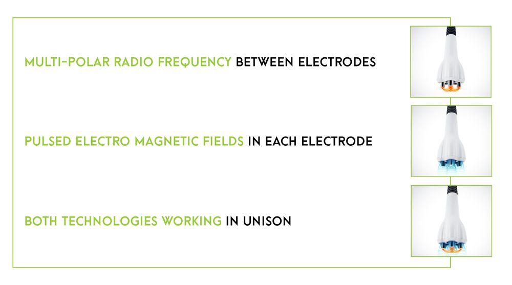 Venus Multi-Polar Radio Frequency Technology