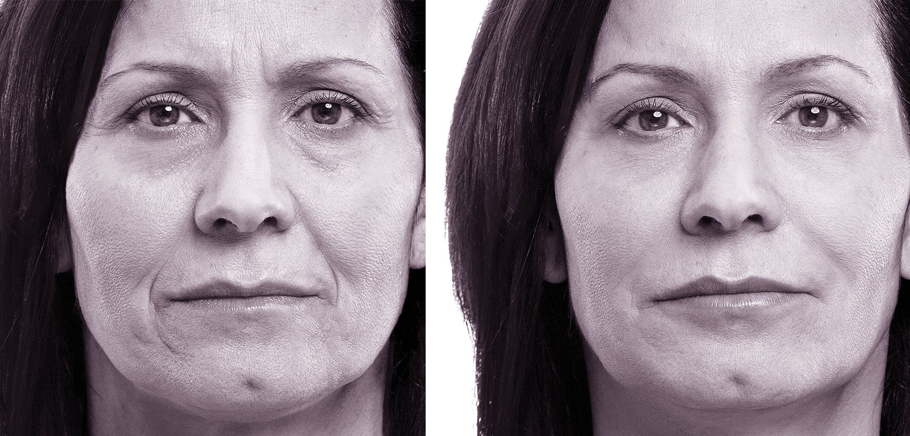 Volbella Before and After Images