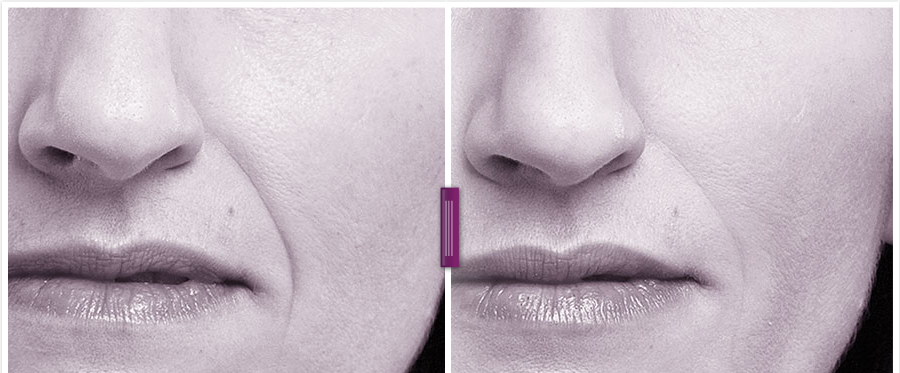 Juvederm Vollure Before and After Photos