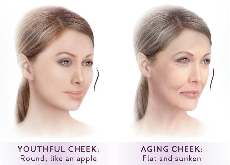 Voluma Aging Face