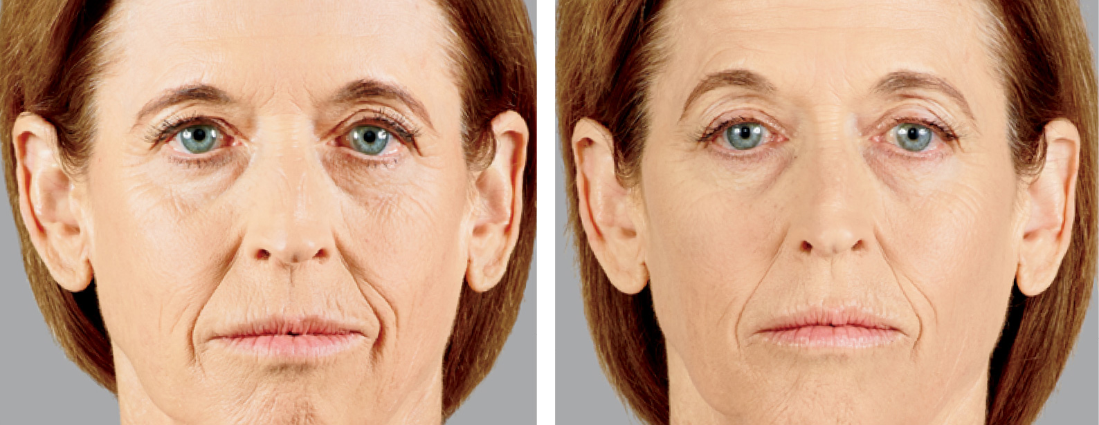 Voluma Before and After Photo Woman Front of Face