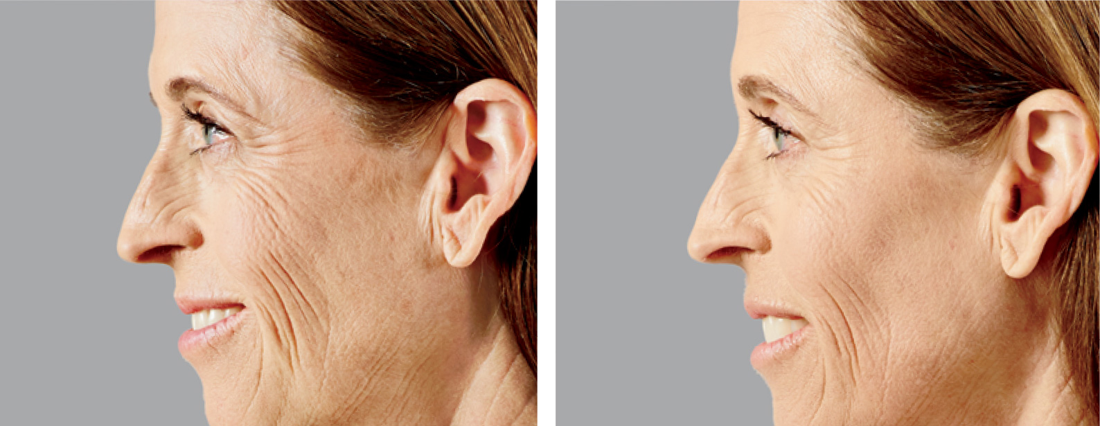 Voluma Before and After Photo Woman Side Face