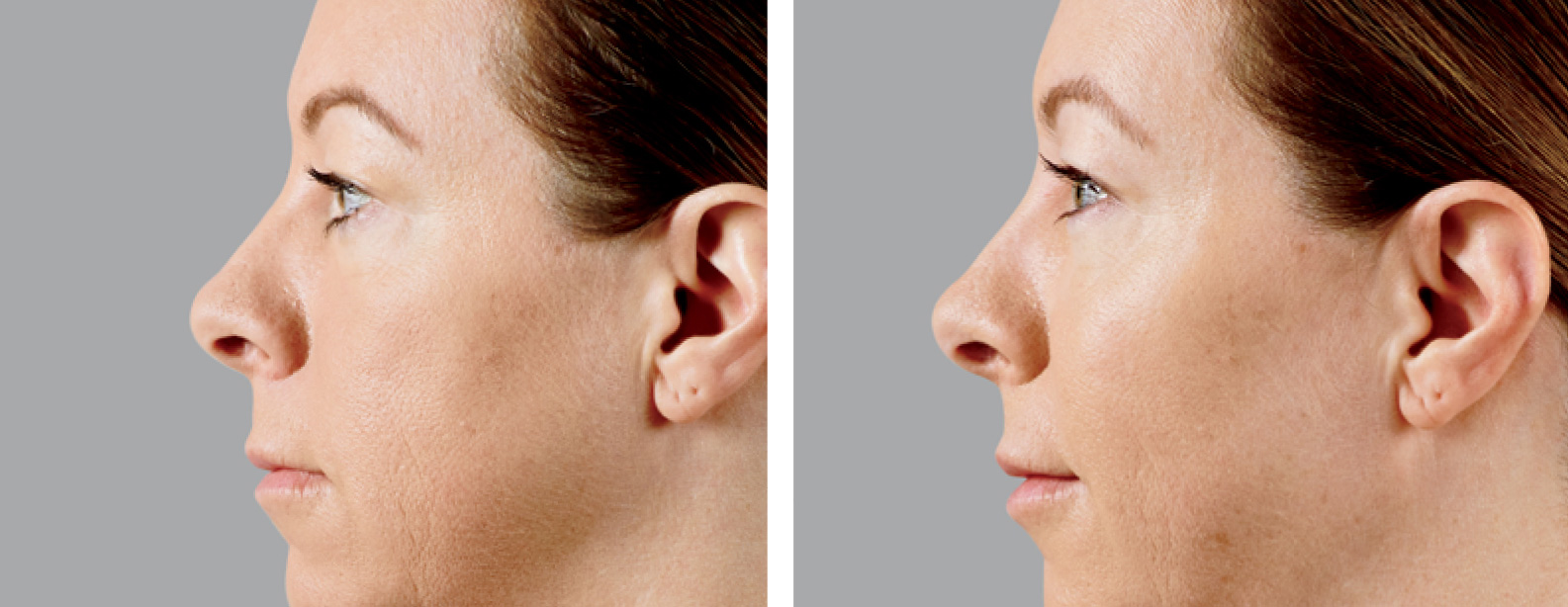 Voluma Before and After Photo Side Face